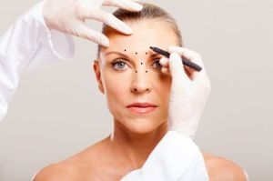 Markierung vor der Botox Therapie