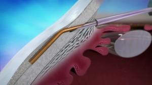 XEN Implantat (Fa. Polytech-Domilens)